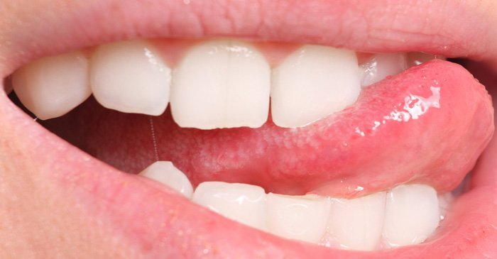 Denti ruvidi: cause e rimedi naturali