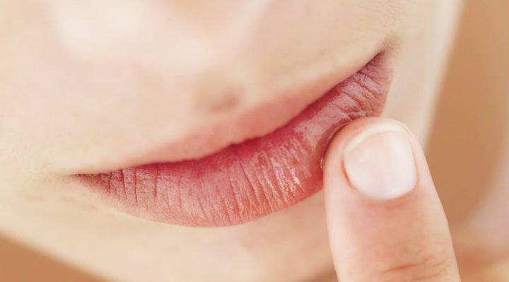 proteggere le labbra dal freddo