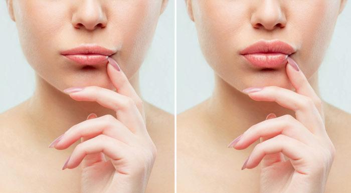labbra più carnose prodotti