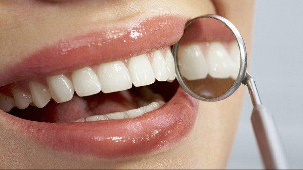 Perfect Smile Pro: come usarlo per eliminare la placca